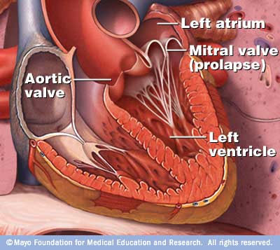 Mitral Valve Prolapse - Pinterest